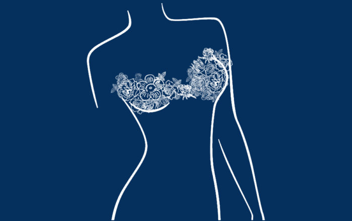 how to examine your breasts for signs of cancer after implants?